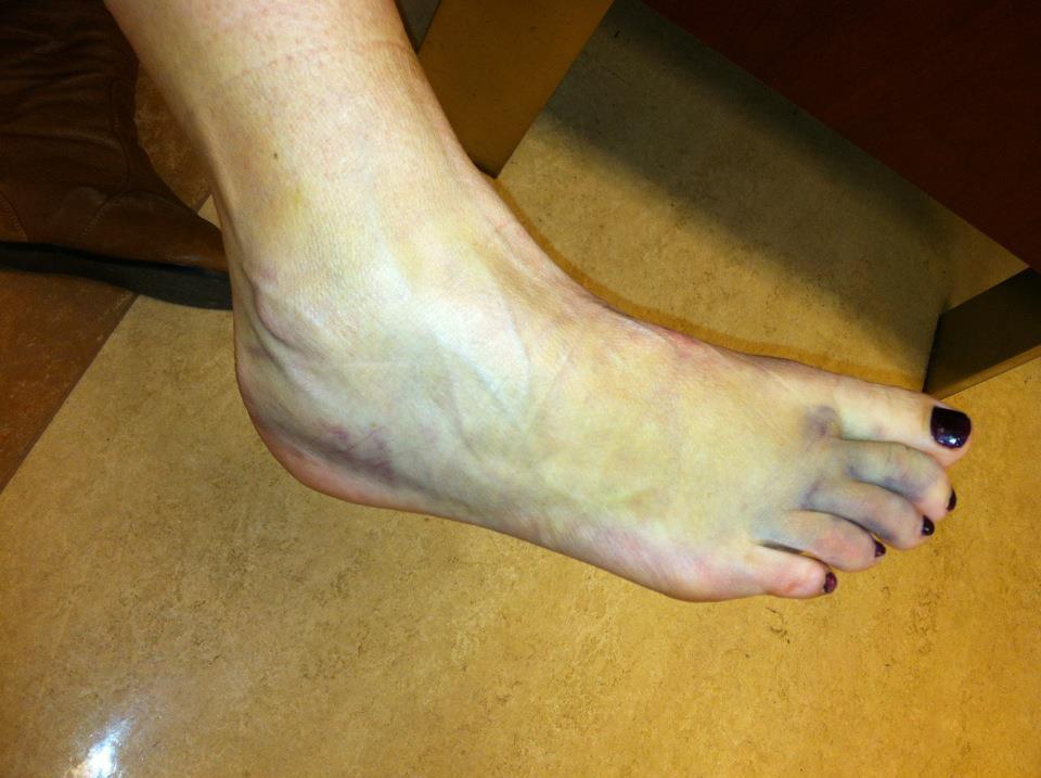 swollen-ankle.jpg